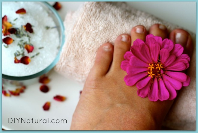 Dry Cracked Feet 1