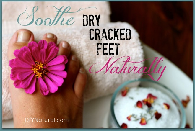 how to get rid of dry cracked feet naturally
