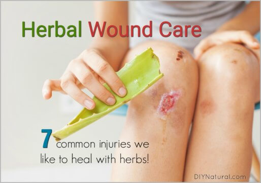 Healing Herbs for Wounds