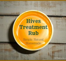 Treat Hives Naturally With This DIY Healing Rub