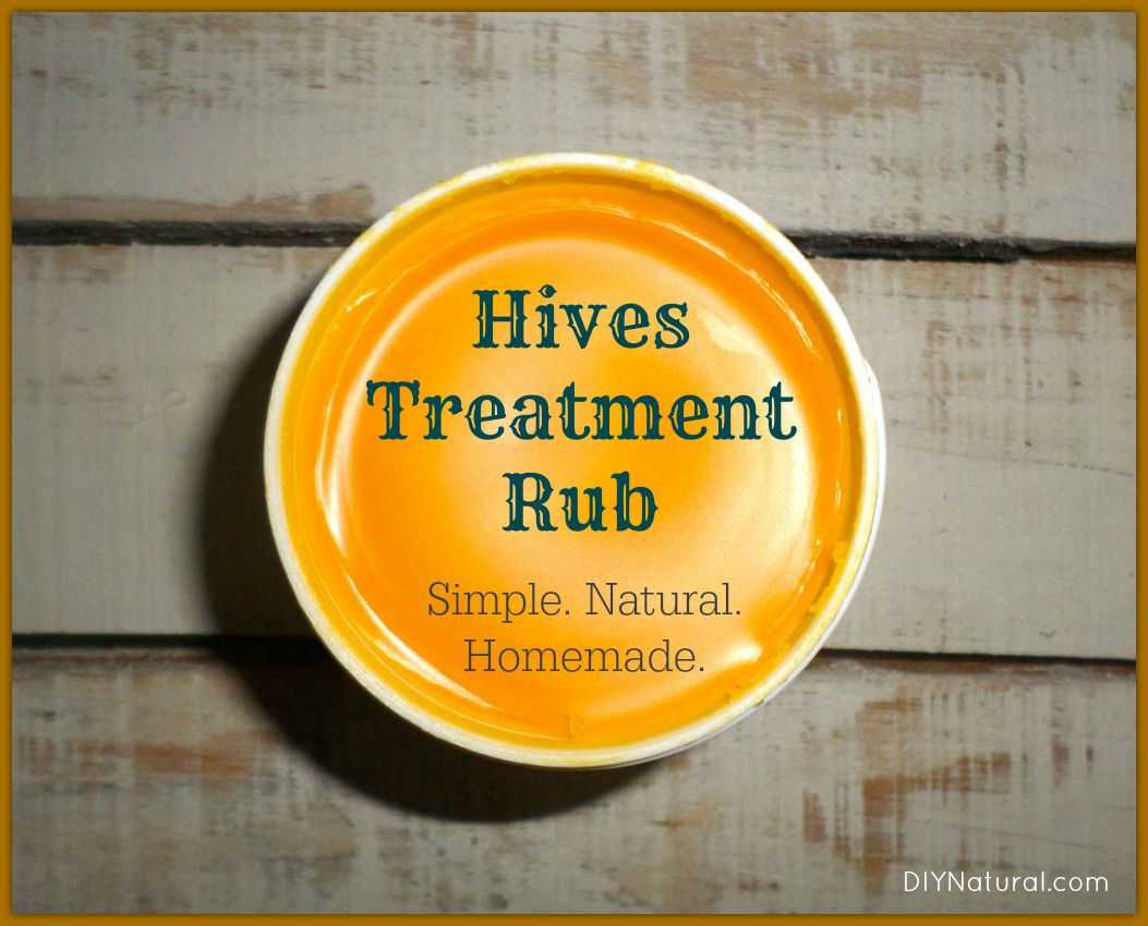 Hives Treatment A Natural Homemade Healing Rub Recipe