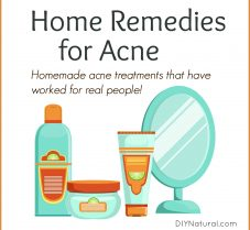 Home Remedy/Treatment for Acne and Blemishes