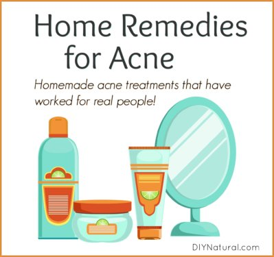 Home Remedies for Acne Homemade Treatment