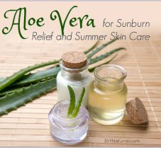 Home Remedies for Sunburn and Summer Skin Care