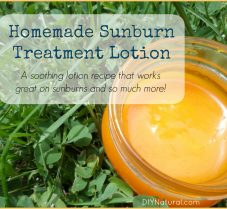 Sunburn Treatment: A DIY Soothing Sunburn Lotion