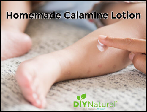 Homemade Calamine Lotion Recipe DIY