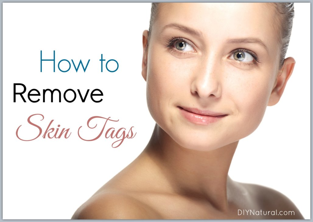 Learn 5 Ways to Get Rid of Skin Tags Naturally
