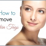 How to Get Rid of Skin Tags Naturally