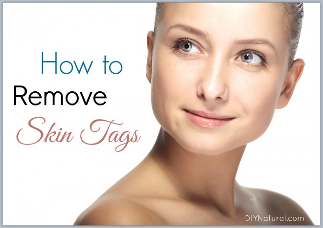 How To Remove Skin Tags