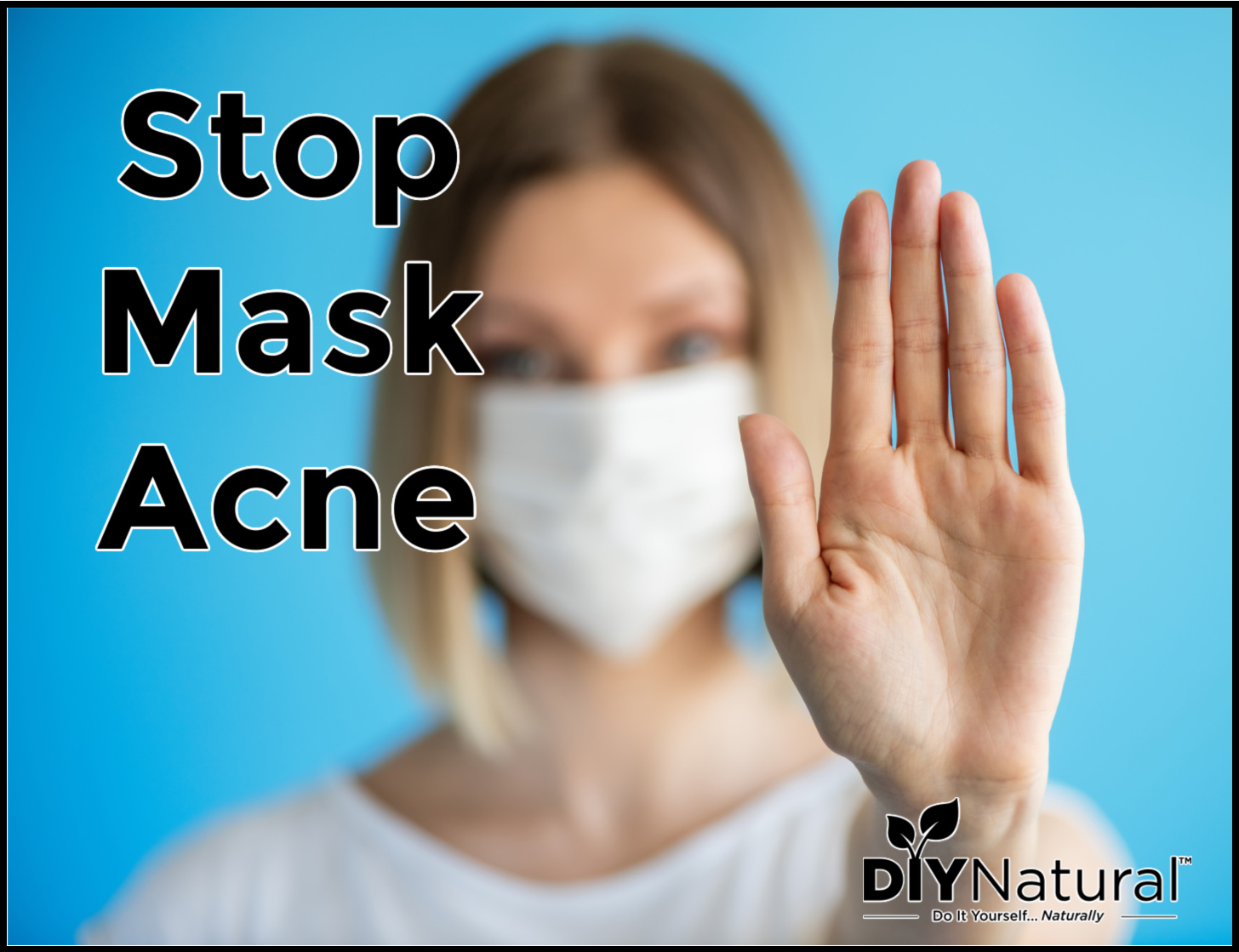 Learn How to Get Rid of and Even Prevent Mask Acne