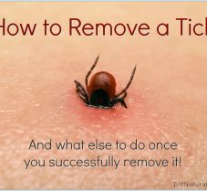 How to Remove a Tick Once You Have Been Bitten