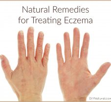 Natural Remedies for Treating Eczema Flare-Ups