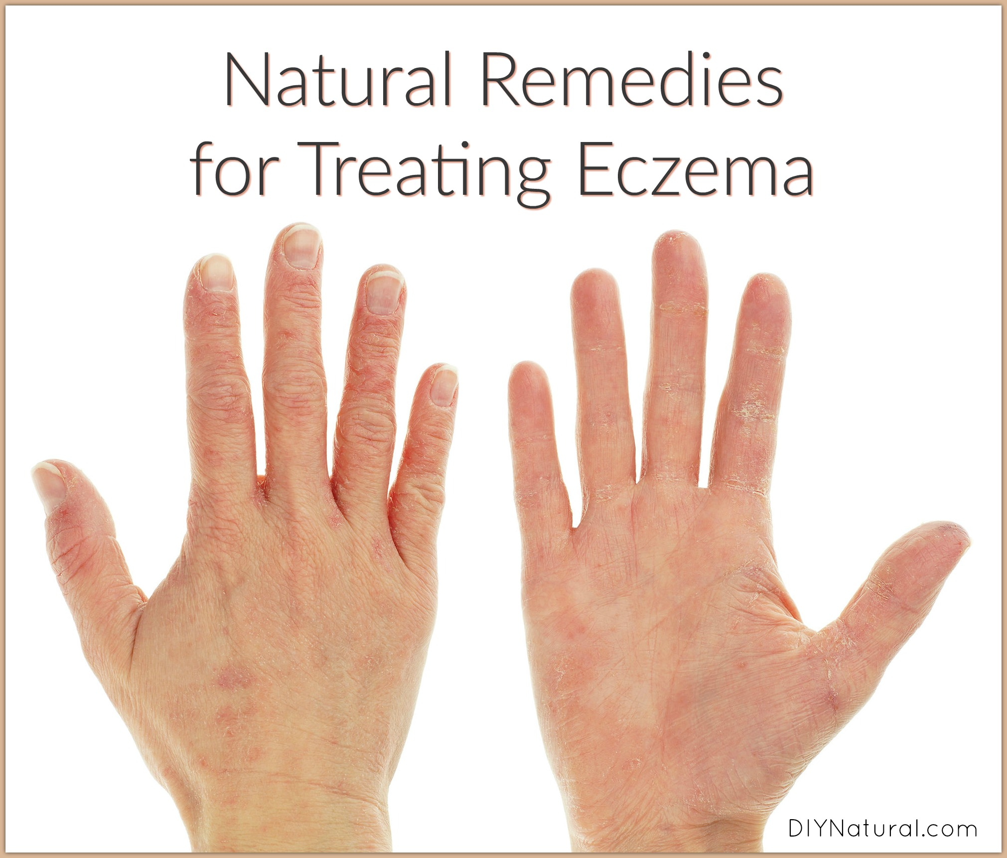 Natural Remedies For Dermatitis