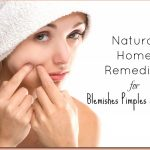 Natural Home Remedies for Blemishes