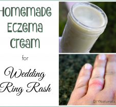 Homemade Eczema Cream for Wedding Ring Rash