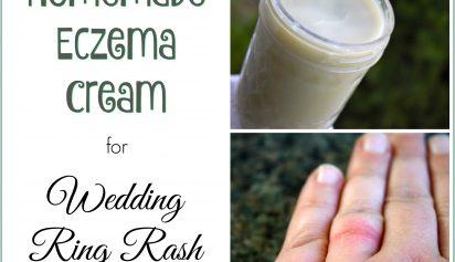 Wedding Ring Rash Homemade Eczema Cream