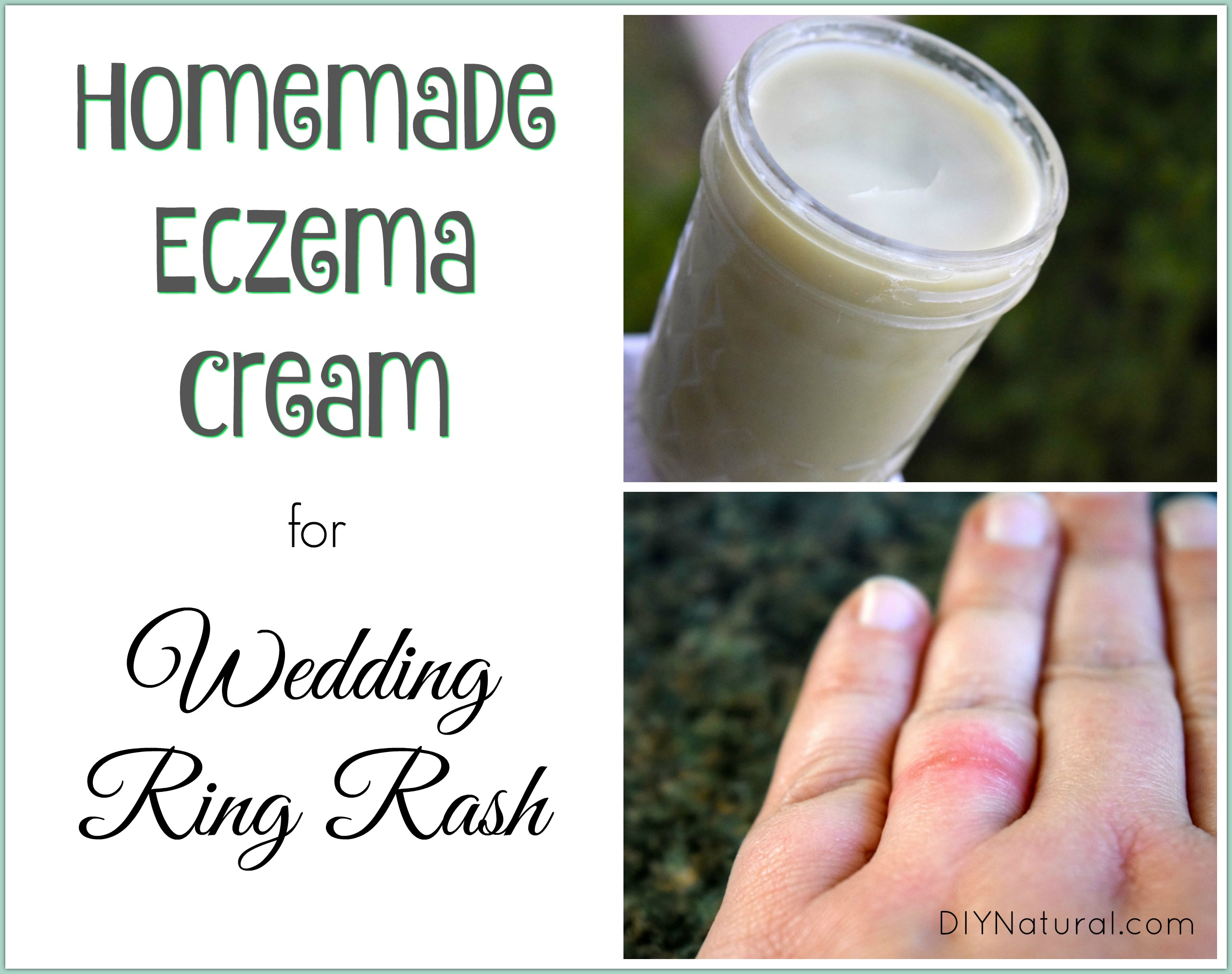 homemade eczema cream relief for wedding ring rash and more - Wedding Ring Rash